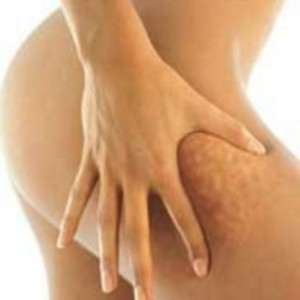 cellulite coscia