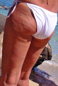 cellulite gambe